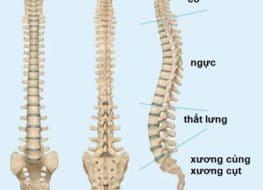 Nguyên nhân và triệu chứng vẹo cột sống